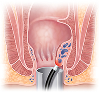 Cross section of anus showing laser treating hemorrhoid.
