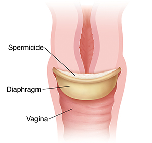 Diaphragm with spermicide in place on cervix.