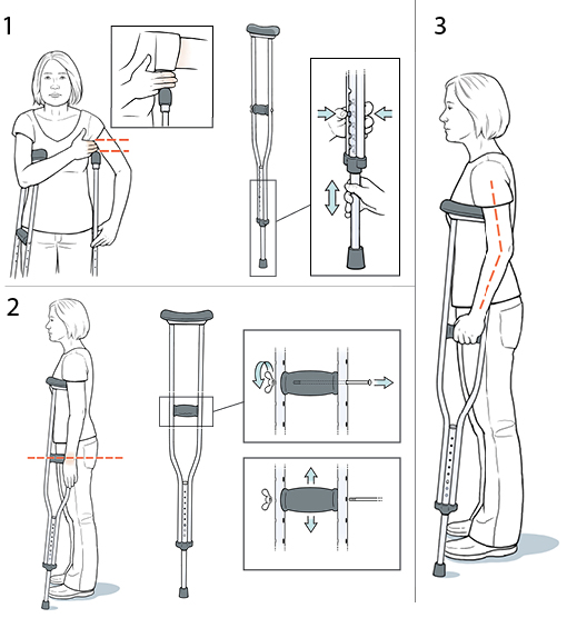 3 steps in fitting crutches.