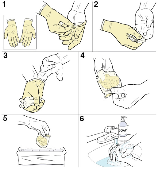 6 steps for removing sterile gloves