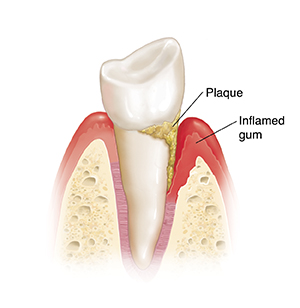 Side view of tooth in bone showing plaque and inflamed gum.
