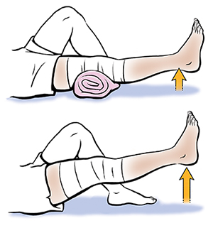 1. Leg from knee down showing short-arc knee extensions. 2. Leg from knee down showing straight leg raise.