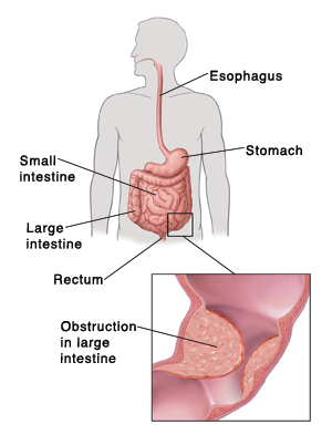 Outline of human figure showing digestive system and pointing out esophagus, small intestine, large intestine, and rectum. Detail of obstruction inside large intestine.